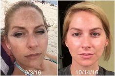 "This is Bridget... Check out what she has to say about her results! ""I finally worked up the nerve to share my before and after one month results on RODAN + FIELDS REVERSE AMP IT UP SPECIAL. When I took this first picture, I was on vacation and was just checking to see how bad my makeup had smeared after getting out of the water. YES, MAKEUP... I was wearing makeup. After looking at this picture, I decided I finally had to do something about my sun spots."""