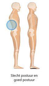 Lage rugpijn. Pijn in de rug, onderrug, rugklachten behandeling