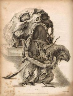 John Bell - dissection of a pharynx affected by abscess (19th century).