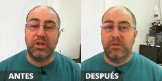 teleprompter-casero-compara