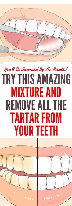 Top Oral Health Advice To Keep Your Teeth Healthy – Best Teeth Whitening Techinque Receding Gums, Natural Antibiotics, Detox Your Body, Health Promotion, White Teeth, Oral Hygiene, Oral Health, Health Care, Teeth Health