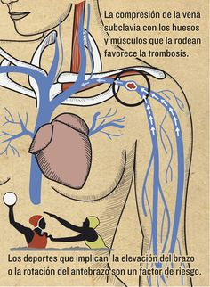 Trombosis subclavia   Magazine   Infografía salud