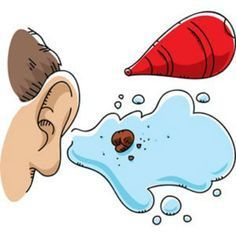 How to Get Rid of Ear Wax Quickly...gotta remember if kids complain of this