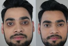 Dark Circles Clinic London - Under Eye Circles Removal Treatment