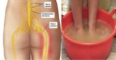 The sciatic nerve is the longest nerve in the human body. It`s inflammation produces a very uncomfortable pain that extends from the ribs to below the knee. Resting helps alleviate the problem temporarily but does. Sciatica Pain Relief, Sciatic Pain, Sciatic Nerve, Nerve Pain, Fitness Workouts, Spinal Nerve, Spinal Cord, Herbal Plants, Back Pain