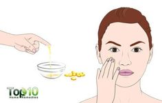 How to Get Rid of Acne Scars  #clearskin#