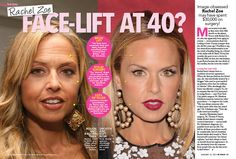 Rachel Zoe Plastic Surgery Always interesting what you can find when you type in surgeons and other related terms