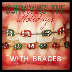 Surviving the Holidays With Braces! Foods to enjoy and foods to avoid during the holidays :) Braces Food, Braces Tips, Dental Braces, Teeth Braces, Braces Humor, Braces Smile, Dental Humor, Braces Problems, Braces Retainer