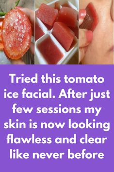 Tried this tomato ice facial. After just few sessions my skin is now looking flawless and clear like never before I have told you tomato facial before. But this is little bit different, today we will tell you how can you do tomato ice facial at home that will not only give you glowing spotless skin but will also improve your blood circulation with instant cooling soothing effect Step 1 – Tomato scrub Honey + …