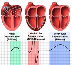 Three hearts showing a P-Wave, QRS-Complex, and a T-Wave Cardiac Nursing, Nursing Mnemonics, Medicine Student, Nursing School Notes, Cardiac Cycle, Medical Anatomy, Nursing Students, Qrs Complex, Human Heart