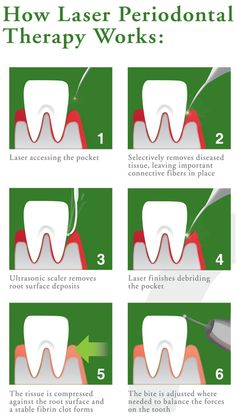 Ready to learn all about Laser Periodontal Therapy! Dental Hygiene Student, Medical Dental, Dental Assistant, Dental Hygienist, Dental Implants, Oral Hygiene, Dental Health, Dentistry Education, Laser Dentistry