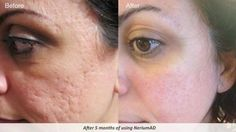 Nerium works on acne scars too!  WTF is nerium? Lol