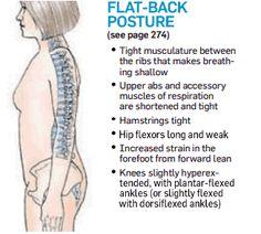 Common Posture Problems