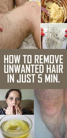 Mar 2020 - How to Remove Unwanted Hair in just 5 Minutes Upper Lip Hair Removal, Permanent Facial Hair Removal, Back Hair Removal, Underarm Hair Removal, Electrolysis Hair Removal, Remove Unwanted Facial Hair, Unwanted Hair, Best Hair Removal Products, Hair Removal Methods