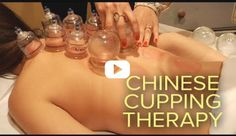 Traditional Chinese medicine's cupping therapy practice can help ease pain and improve circulation.