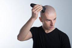 mikropigmentacja skóry głowy Wygraj walkę z łysieniem