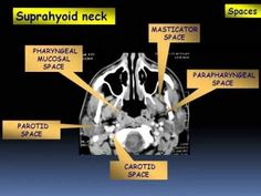 Imaging of the Sella - Dr Mamdouh Mahfouz - YouTube