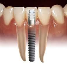 Dental Implants ROCK! They can last forever. They can never get a cavity!  #dentist #dental #dental humor #dental hygiene #dental hygienist #dental office Implants Dentaires, Best Dental Implants, Dental Implant Surgery, Implant Dentistry, Cosmetic Dentistry, Dental Implant Cost, Sedation Dentistry, Oral Surgery, Dental Health