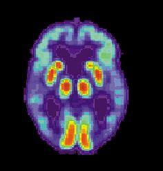 Amiloide imaginando útil en el tratamiento de la enfermedad de Alzheimer; primero directrices emitidas