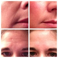 Results after ONE use from our newly launched at home microdermabrasion system, the Macro Exfolistor. Still blows my mind! kaciek.myrandf.com