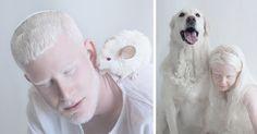 O albinismo é um distúrbio congénitocaracterizado pela ausência completa ou parcial de pigmento na pele, cabelos e olhos, devido à ausência ou defeito de uma enzimaenvolvida na produção de melanina. Pessoas com esta característica têm a pele branca, cabelos/pelos brancos e olhos azuis claros, fazendo com que tenham uma beleza tão pura que quase parece