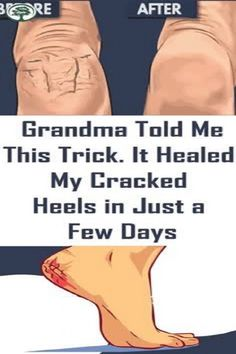 Grandma Told Me This Trick. It Healed My Cracked Heels In Just A Few Days ! The post Grandma Told Me This Trick. It Healed My Cracked Heels In Just A Few Days ! appeared first on Wedding. Inbound Marketing, Marketing Digital, Motivation Yoga, Endocannabinoid System, Group Boards, Yoga Quotes, Bodybuilding Motivation, Tell Me, Morning Yoga