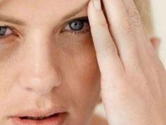 Una de las consecuencias de beber en exceso es la hinchazón facial, que se traduce en bolsas debajo de los ojos, piel apagada, resequedad y en casos extremos hasta ardor.Si se te pasaron los tragos y tienes que salir al día siguiente, te compartimos una receta súper sencilla...