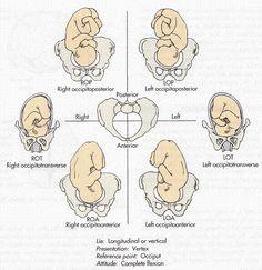 A posição que o bebé ocupa nos momentos antes do parto é muito importante para definir como será o nascimento. Se estiver numa posição adequada, e estivere