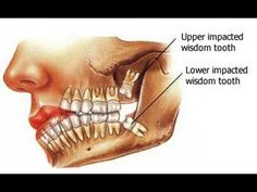 Wisdom Teeth Symptoms - Symptoms Of Wisdom Teeth