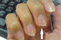 If your nails are breaking or splitting, you either have brittle nails or weak nails. Learn how to protect your nails and finally get the beautiful, strong nails you deserve. Nail Care Tips, Nail Tips, Nail Growth Tips, Ongles Forts, Peeling Nails, Split Nails, No Chip Nails, Nagel Hacks, Brittle Nails