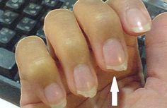 Como evitar que las uñas se quiebren
