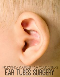 Do your children struggle with frequent ear infections? Are you tired of giving them antibiotics and drugs? Here is how I cured my childrens ear infections for good with absolutely NO drugs! Toddler Ear Infection, Dogs Ears Infection, Ear Infection Home Remedies, Ear Tubes, Teeth Whitening Remedies, Sick Baby, Holistic Remedies, Kids Health, Health Tips