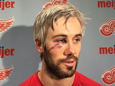 Drew Miller of the Detroit Red Wings almost lost an eye last night. He was back at practice today. ‪#‎hockeyplayers‬