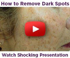 Best Dark Spot Corrector Reviews on Face Brown Spots on Skin - WATCH SHOCKING Video http://www.easybodyfit.com/Beverly-Hills-MD-Dark-Spot-Remover-Shocking-Video