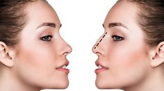 Our expert Plastic Surgeons discuss 6 common nose shape concerns corrected by Rhinoplasty Surgery. Nose Shapes after Rhinoplasty. Rhinoplasty Surgery, Nose Surgery, Hooked Nose, Nose Reshaping, Nose Shapes, Dermal Fillers, Trends, Best Face Products, Acne Treatment