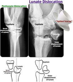 lunate dislocation