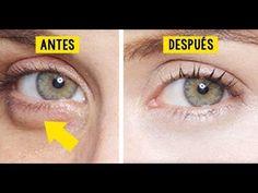 Tratamiento natural para las ojeras y bolsas debajo de los ojos - YouTube