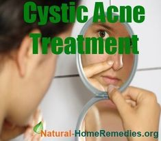 Acne Remedies Cystic Acne Treatment - 3 Tips To Remove Severe Acne! Cystic Acne Remedies, Cystic Acne Treatment, Oily Skin Treatment, Back Acne Treatment, Natural Acne Treatment, Natural Acne Remedies, Home Remedies For Acne, Acne Treatments, Hair Remedies