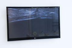 Exposición: Mar Gascó. El Cuerpo Descrito (2015) Espacio de Creación Contemporánea de Cádiz (ECCO)  Título: Alunizaje (2013) Videocreación audiovisual a partir de ecografía mamaria