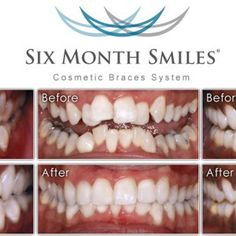 6 month Smiles--Before and After ========  We can do this for you! Great for teens and adults!!! Check us out at Water Brook Dental for 6 Month Smiles/6 month braces. We have affordable and flexible payment plans. http://waterbrookdental.com/cosmetic-dentistry/