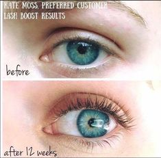 Missing your lash appointments? Look no further. 👀 Lash Boost is a blast in a tube! With just one swipe a night, this nourishing serum will have you seeing thicker, stronger, and fuller eyelashes (and eyebrows!) in no time. Rodan And Fields, Rodan Fields Lash Boost, Applying False Lashes, Applying Eye Makeup, Mascara Tips, How To Apply Mascara, Longer Eyelashes, Long Lashes, Lash Boost Results