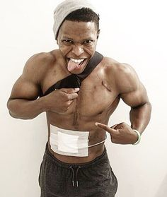 Andrew Jones is the best example to show how far medical technology has come. This model and bodybuilder from Connecticut is living…