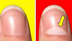 Nail Health Signs, Signs Of Genius, Genius Test, Real Genius, Life Hacks Youtube, Playdough Activities, Movie Teaser, Important Things In Life, For Your Health