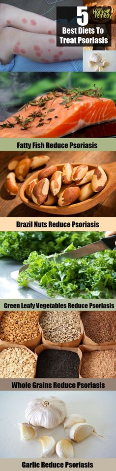 5 Best Diets To Treat Psoriasis