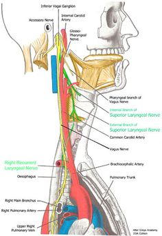 Right Laryngeal Nerve damage with thyroid surgery = recurrent laryngeal and external branch of superior laryngeal nerves
