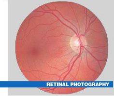We offer Retinal Photography. Retinal Photography is an important tool that can assist in the early detection of eye diseases such as diabetic retinopathy, hypertensive retinopathy, precancerous and cancerous lesions, glaucoma, and macular degeneration. http://drrosenak.com/wp-content/uploads/2015/02/ROO-retinal-flier.pdf