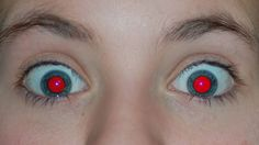This is what causes red-eye in photographs