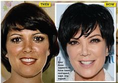 Kris Jenner Plastic Surgery Before and After Photos: Nose Job, Facelift and Breast Implants! - Celebrity Weight Loss and Celebrity Plastic Surgery Kris Jenner Plastic Surgery, Plastic Surgery Photos, Celebrity Plastic Surgery, Photoshop, Forehead Lift, Anti Aging, Jenner Photos, Celebrities Before And After, Brow Lift