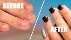 Fix Short Bitten Nails with Acrylic