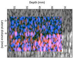 GENIO Italiano Giuseppe Cotellessa: New Technique Reveals Ultrasound's Hidden Details,...